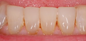 12Restored with Composite Bonding