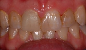 61 Heavily filled front teeth and temporary crown