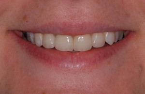 64 Smile After